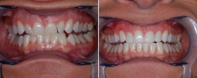 This patient wanted to straighten her teeth without doing any extractions. She had been told orthodontics could not be done without extracting her wisdom teeth. After Invisalign, complimentary whitening and cosmetic bonding, she has a brighter, younger smile without losing any teeth.