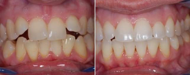 This patient wanted straight teeth without any metal. In 18 months she now has a straight, beautiful smile.