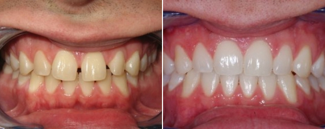 This paitent had a large gap between his front teeth. In about 14 months, the space was closed and he had a new smile.