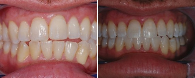 At his regular hygiene visit, this patient asked if his teeth could be straighter. Dr. Alouf recomended Invisalign, and in about 24 months, he has straighter teeth. He now smiles even more than before!
