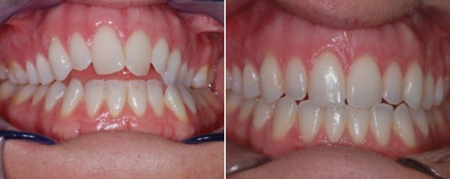 This patient had a complex case. She was told she would need jaw surgery to correct her bite, but she decided she did not want surgery. We were able to help her, and she is thrilled with her new smile.