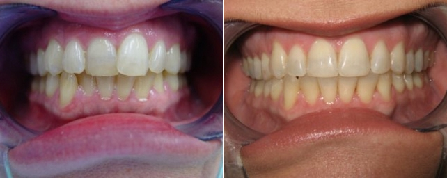 This patient did not like the overlapping of her front teeth. Tray whitening was included in her Invisalign treatment.