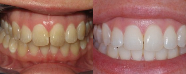 This patient came to us because she wanted the overbite with her front teeth straightened. She was a perfect candidate for Invisalign. In just 18 months we completed her treatment. During her Invisalign treatment, Dr. Alouf prescribed arch widening to make room for her teeth. This allowed the Invisalign trays to move her teeth into a more functional position and corrected her overbite. Complimentary tooth whitening was included with her Invisalign treatment. She is thrilled with her new straight and brighter smile.
