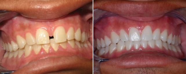 This young man came to us with spacing between his front teeth. He wanted to close the space and whiten his smile. After a thorough exam, we determined that he needed gingival therapy due to his bleeding and puffy gum tissue. After successful therapy to improve the health of his gums, he completed Invisalign in 12 months. He did complimentary professional tray whitening and now he smiles constantly.