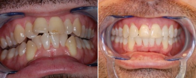 This patient wanted a straight bright smile. With Invisalign we gave a smile to be proud of.