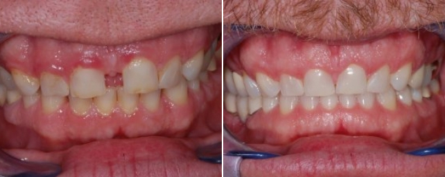 This patient wanted to close the space between his front teeth, and he wanted a whiter smile. After Invisalign and complimentary whitening, he is very happy to show his smile.