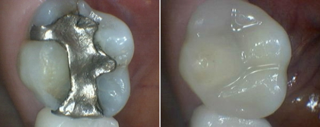 This paitent has an old metal mercury filling, which was leaking with decay under it. Dr. Alouf recommended a porcelain onlay to restore the tooth. In one appointment we removed the old filling and fabricated an all-porcelain onlay in our office with our Cerec milling machine.