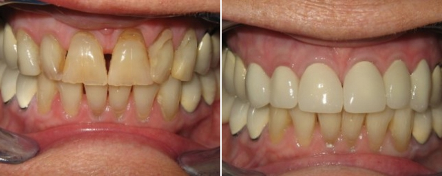 Patient did not like the color, size, visible restorations and spacing of her teeth. Patient restored with all porcelain crowns