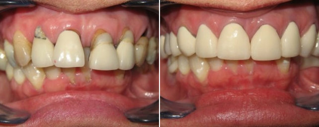 This patient wanted a pretty smile for her son's wedding. We completed advanced periodontal therapy first. Then we placed eight crowns, one veneer and a four-unit bridge on the top. A lower Thermaflex removable partial on the bottom helped her smile proudly and beautifully in her son's wedding photos.