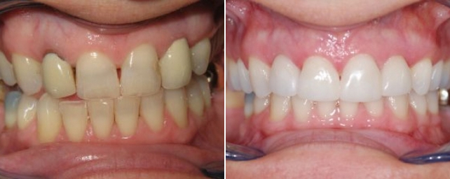 This patient came to us because she did not like the spaces between her teeth. She also did not like the color of her old crowns and wanted her visible mercury metal fillings replaced. We did two new crowns and two veneers and replaced her visible mercury metal fillings.