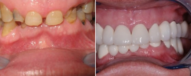 This patient came to us after years of dental neglect. Numerous teeth were extracted with crown-lengthening procedures done with the Biolase laser. We placed porcelain-to-precious metal crown and bridges to restore the patient to a healthy, functional dentition.