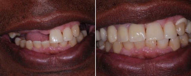 This patient wanted to replace his missing teeth. After periodontal therapy, we made him upper and lower Thermaflex removable partials.