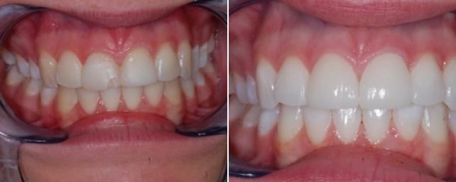 This young woman came to us with concerns about her front teeth. As a child she had broken her front teeth and had bonding placed. After replacing the bonding several times through the years, she decided she wanted something more permanent. Dr. Alouf recommended porcelain veneers on her two front teeth. Because the gum on one tooth was lower than the rest, he suggested we recontour the margin with our Biolase laser. After tray whitening all her teeth, Dr. Alouf recontoured her gingiva and placed two veneers to match the new, lighter shade of her teeth. Our patient was excited about her new look and smile.