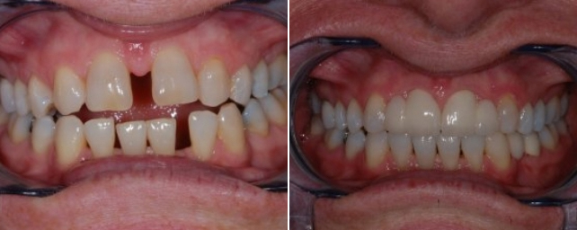This patient came to us with open spaced she did not like and two missing lateral incisors in front. Dr. Alouf chose comprehensive treatment options for her. We first started with Invisalign to close the large spaces and make room to replace the missing teeth. After she completed Invisalign, Dr. Alouf placed two porcelain bridges to replace the missing lateral teeth. Now she can smile with confidence.