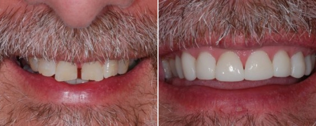 This patient told us he wanted to close the spaces between his teeth. We gave him two options: Invisalign or porcelain veneers. He decided that he would do veneers, because he could be done with treatment in three weeks instead of several months. In two appointments, Dr. Alouf prepared and placed eight porcelain veneers across the upper front teeth. The patient was thrilled to have a new smile in less than two months.
