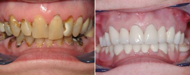 Patient came to us with pain, generalized decay and broken teeth. She wanted a nice smile. We did a full-mouth reconstruction, which included multiple root canals, extractions, composite restorations, crowns, implant-support bridge and a Thermaflex partial.