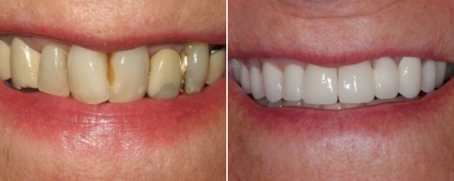 This patient came to us with old leaking crowns and wanted a new, bright smile. After eight porcelain crowns and a three-unit porcelain bridge, she has a smile she loves!