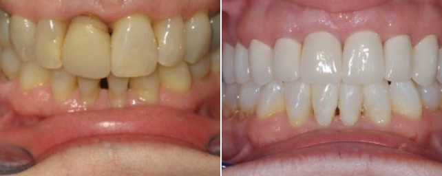 This lady came to us wanting a pretty, younger smile. After nine porcelain crowns and professional-tray whitening, she says she can smile with confidence and feels 10 years younger.