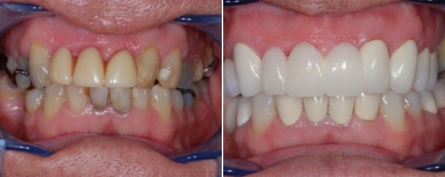 This patient came to our office seeking options for his smile. He had an upper removable partial denture that he was unhappy with. He also wanted a whiter, brighter smile. After a comprehensive exam, we found a number of problems, including periodontal disease and decay. After periodontal treatment, we replaced his missing teeth with a combination of porcelain crowns, bridges and implants while he was under oral sedation in our office. He is very happy with his whiter, younger smile.