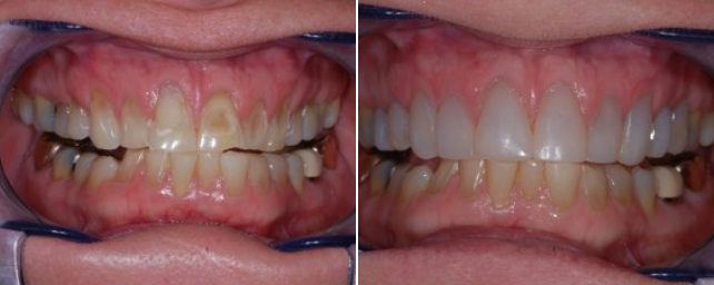 This patient had erosion of her teeth from clenching and grinding, along with toothbrush abrasion. Dr. Alouf restored her smile with chairside veneers then made a brux appliance to help protect her teeth in the future.