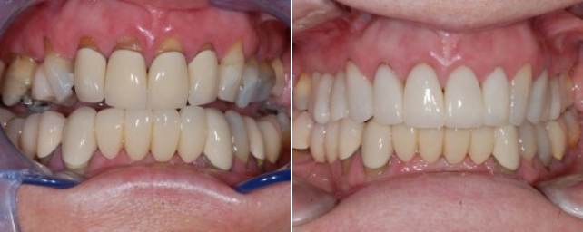 Dr. Alouf restored this patient's smile with eleven all-porcelain crowns, which look very natural. She loves her new smile!