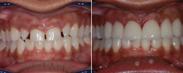 This patient came to us wanting the gaps in her smile closed. After her consultation she chose to do Invisalign to close the gaps. She also wanted a whiter smile. After 12 months in Invisalign, Dr Alouf placed four porcelain veneers and two porcelain crowns to correct the size and shape of her front teeth. The patient also did professional-tray whitening. Now she has a beautiful smile she is proud to show off.