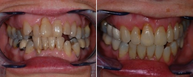 This patient came to us wanting a healthy mouth and a nice smile. She had severe crowding and several areas of decay. Dr. Alouf recommended Invisalign with crowns and composite restorations to help her achieve her goal. After 24 months of Invisalign treatment, five porcelain crowns, and nine composite restorations, she now has a healthy smile she is proud of, and we are proud of her for reaching her goal!