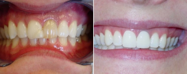 Patient did not like the discoloration of her front tooth or the bonding on the adjacent tooth. We did two porcelain crowns and whitened the other teeth.