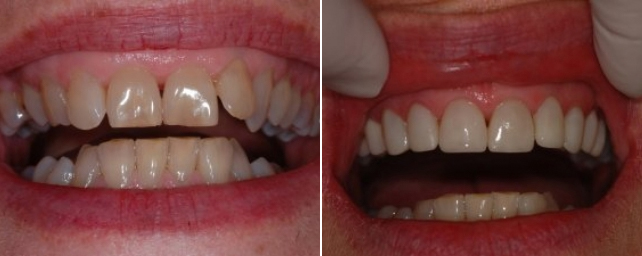 This patient said she did not smile and wanted to start smiling again. The first step was removable retainer therapy to move her front teeth into a better position for veneers. Dr. Alouf placed eight porcelain veneers and a three-unit bridge to replace a missing tooth. The lower teeth were power whitened. An occlusal guard was made to protect her veneers and crowns while she sleeps. She now smiles with confidence.
