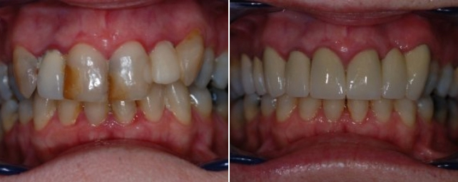This patient wanted a pretty smile. After completing periodontal therpay to get her mouth healthy, we placed six porcelain crowns and one three-unit porcelain bridge. She now has a beautiful smile and is very pleased.