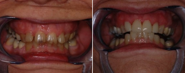 This patient came to us wanting a pretty smile. She was tired of her discolored and chipped teeth. We completed four porcelain crowns and restored her smile.