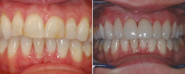 This patient wanted a nice smile to deal with customers. She had old bonding on her front teeth and wanted something more permanent. Dr. Alouf recommended a combination of veneers and crowns for a functional cosmetic solution. Using anxiolysis to make her comfortable during her treatment, we completed two porcelain veneers and four porcelain crowns on her six front teeth. Now she can smile with confidence.