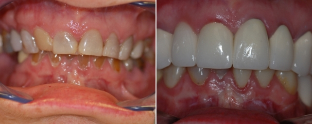 This patient wanted a new smile. After seven crowns, one bridge, one implant, and multiple composite restorations, she has a whiter, younger smile.