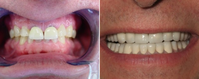 This patient had a history of extreme teeth grinding. Notice the worn-down teeth and oversized crowns on the two front teeth. We placed 28 Goldtek crowns and opened the patient's bite up to a normal position.