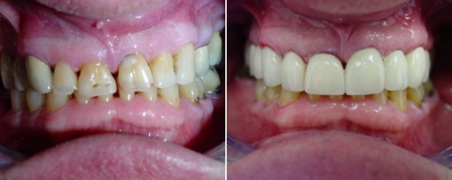 This patient had worn upper teeth from grinding and several old composite fillings with decay around them. He was also missing some upper teeth in the back on both sides. We restored his upper arch with six crowns and two bridges.