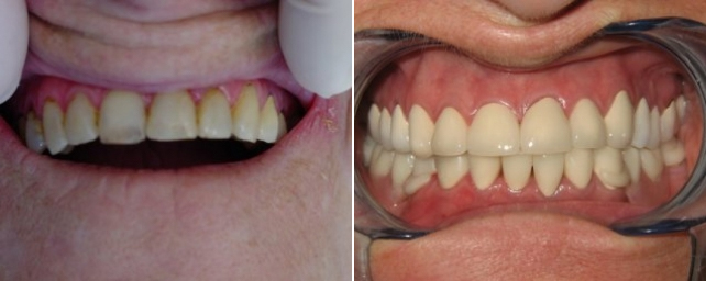 This patient came to us with several areas of concern. She had broken, decayed and missing teeth top and bottom. She also had untreated periodontal disease. Our first step was advanced periodontal therapy to restore her gums to a healthy state. Then we placed 22 Goldtek crowns and a lower Thermaflex removable partial.
