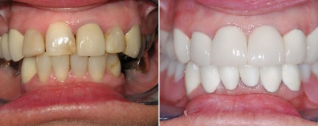 This patient did not like the shape, color and spacing of her teeth. We completed advanced periodontal therapy first. Then we placed eight crowns and a five-unit fixed bridge on the top. On the bottom, we placed an implant-supported removable partial. This comprehensive care gave her a healthy and functioning smile.