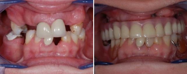 B-A-Implants-3