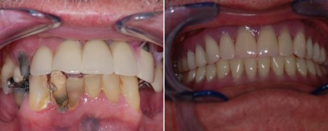 B-A-Implants-4