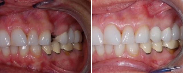 This patient from the previous photo was missing a single tooth. She wanted to replace the missing tooth. We placed a single tooth implant with a ceramic crown to restore her full smile. Implant solution designed by Dr. Stephen Alouf.