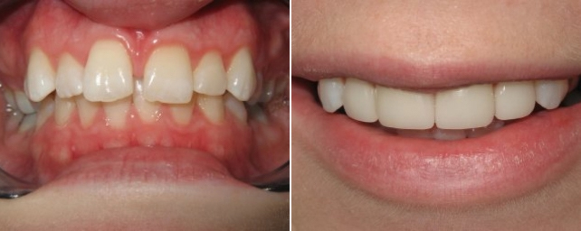 Patient did not like the space between her front teeth. We placed four porcelain veneers and did power whitening.