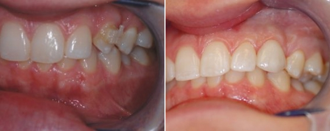 This patient came to us wanting the clear orthodontic bracket removed and the space closed on her canine tooth. After a professional cleaning, we removed the bracket and placed a porcelain veneer. The patient is very happy that her concern was fixed so easily.