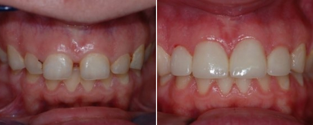 This patient came to us wanting the spaces between her teeth closed. She had braces but wanted a fix for a friend's wedding. After professinal tray whitening, Dr. Alouf reduced her gum tissue and placed four porcelain veneers. She went to the wedding with a new smile!