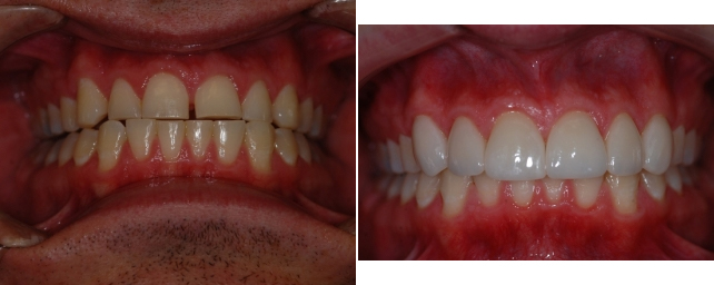 This patient wanted to close the space between his front teeth and to correct the size and shape of his smile. We offered two options: one included Invisalign to close the space. He opted to do six veneers which closed the space and gave him a whiter, more even smile in the shortest time.