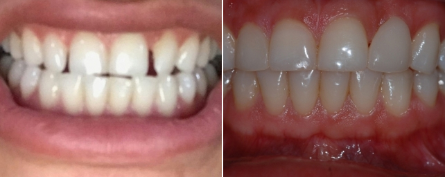 This patient did not like the spaces between her teeth. Dr. Alouf fixed her smile with porcelain veneers.