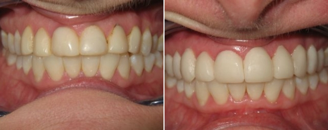 Patient came to us with upper six front teeth bonded with composite that was discolored and had decay around them. We restored her with 10 porcelain veneers.