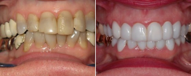 This patient came to us with some old discolored crowns and generalized tetracycline stain. We restored her smile with a combination of all porcelain crowns and veneers.