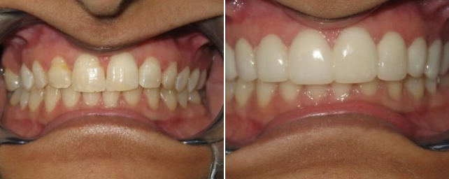 This patient came to us because she did not like the yellow color of her teeth, and she had an enamel defect across several of her top teeth. Dr. Alouf recommended porcelain veneers to improve her smile. In two appointments, we placed 10 veneers across her top teeth. This covered the enamel defect while also making her smile whiter and more even. She is always smiling now.