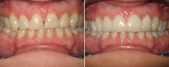 The shape, color and spacing of her front teeth bothered this patient. We did tray whitening then placed four porcelain veneers to improve her smile.