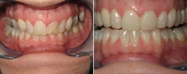 This patient had chipped front teeth and wanted a whiter smile. We placed 10 porcelain veneers on the upper teeth and power whitened her lower teeth.